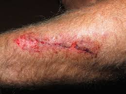 Coupures, blessures et abrasions