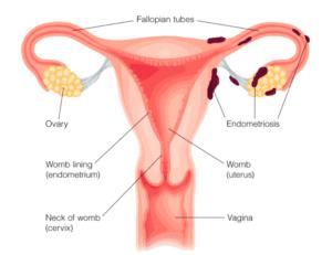 Endométriose, formation de tissu endométrial en dehors de la cavité utérine