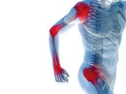 Douleur articulaire : cas d'un polyathrite où de nombreuses articulations en sont touchées