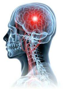 La curcumine préserve la teneur en DHA dans le système nerveux