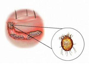Gale, maladie cutanée causée par une