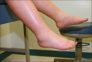 oedeme jambe
