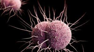 Gonorrhée : infection due à la présence de bactéries gonocoques à Gram négatif, appelées Neisseria gonorrhoeae