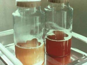Hématurie, présence de sang dans l'urine