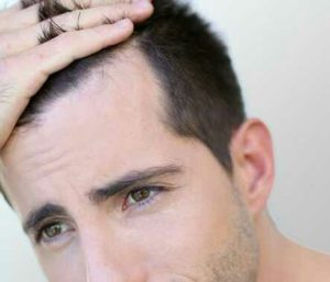 Calvitie, perte progressive des cheveux situés en haut du front, sur les tempes ou sur le sommet de la tête
