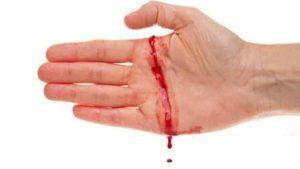 Manifestations de l'hémophilie : difficulté dans la coagulation en cas de saignement, hémorragies spontanées sans lésions, ...