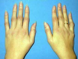 Huile de bourrache soulage les symptômes de la polyarthrite rhumatoïde