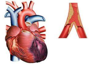 Infarctus du myocarde, ou crise cardiaque, douleur due à une mauvaise irrigation du muscle du cœur entrainant la mort des cellules de cet organe