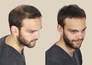 Pépins de courge stimule la pousse des cheveux, en cas de calvitie