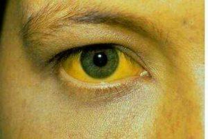 Manifestations de la jaunisse : jaunissement du blanc d'œil, prurit intense, inssuffisance rénale, athénie, hépatomégalie,...