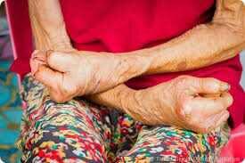 Manifestations de la lèpre : atteintes cutanées, lésions des nerfs, tuméfactions des ganglions, glaucome, ...