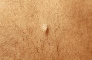 Manifestations du kyste sébacé : boule ronde mobile de tailles variées, ferme ou souple selon le cas