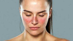 Lupus érythémateux, maladie auto-immune qui se produit lorsque les anticorps réagissent contre des éléments du soi lui-même