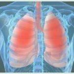 Maladie pulmonaire
