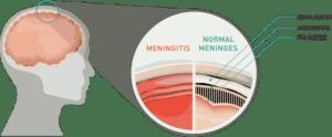 Méningite, inflammation des enveloppes protectrices de l'encéphale et de la moelle épinière