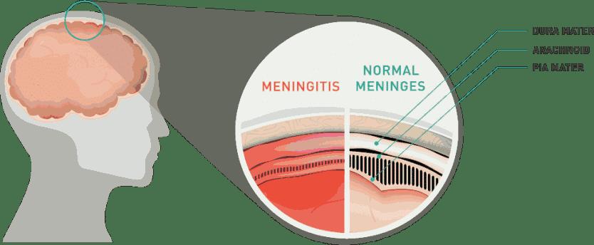 Méningite