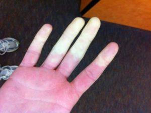 Maladie de Raynaud, trouble de l'irrigation sanguine des extrémités se manifestant cas d'exposition à une variation de température, au froid et au stress