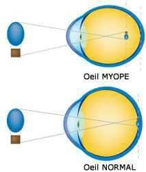 Myopie, défaut visuel caractérisé par une perception floue des objets à partir d'une certaine distance