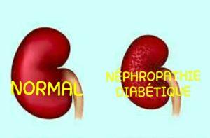 Néphropathie diabétique, complication du diabète se manifestant par une altération progressive des reins
