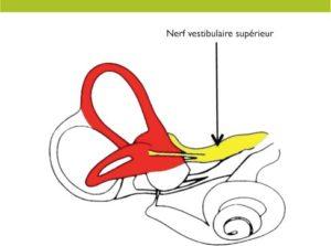 Neuronite vestibulaire, vestibulopathie unilatérale ou névrite vestibulaire, dysfonctionnement aigu du système vestibulaire