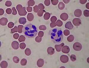 Manifestations de la neutropénie : sueurs froides, fièvres, diarrhée, ganglions, ...