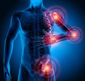 Glucosamine, recommandée dans le traitement du polyarthrite rhumatoide