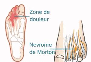 Névrome de Morton, ou métatarsalgie de Morton, maladie caractérisée par une très forte douleur ressentie au pied