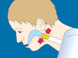 Obstruction des voies respiratoires, accidentelle ou chronique, entrave la circulation normale de l'air vers le poumon