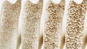 Le cadmium prend la place du calcium dans les os et favorise la formation de pores