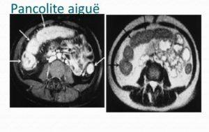 Pancolite, inflammation sévère de la muqueuse intestinale affectant la totalité du côlon et le rectum