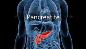 Pancréatite désigne l'nflammation du pancréas