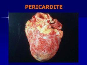 Péricardite, inflammation de la membrane qui enveloppe du cœur