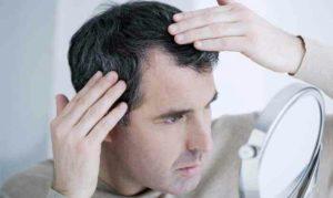 La perte de cheveux pour les hommes peut débuter très vers l'âge de 16 ans