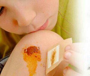 Le miel de thym accélère la guérison et la cicatrisation des plaies