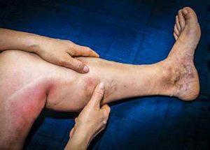 Manifestations de la phlébite : Induration des veines, douleur, rougeur, lourdeur, ...