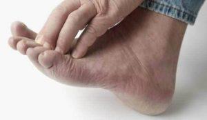 Manifestations des pieds d'athlète : Desquamation, rougeur, prurit, ...