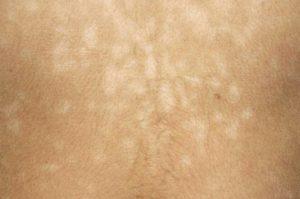 Manifestations du pityriasis versicolor : Taches blanches ou brunes, taches rondes avec des limites claires, taches localisées, squames, ...