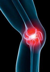 Manifestations de l'arthrose : douleur, craquement, raideur, gonflement, ...
