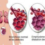 Emphyseme pulmonaire 2