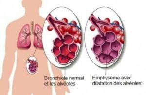 Emphysème pulmonaire, affection des poumons caractérisée par la dégradation des alvéoles