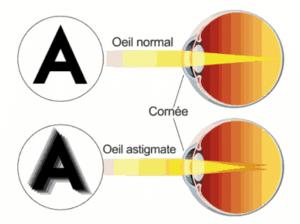 L'astigmatisme se traduit par une déformation au niveau de la courbure de la cornée, causant des troubles visuels