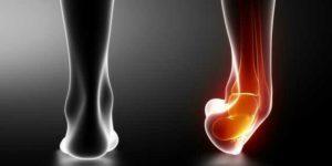 Entorse, lésion d'un ou de plusieurs ligaments due à un traumatisme au niveau de l'articulation