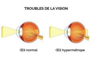 L'hypermétropie est un trouble visuel caractérisé par une vision de près floue