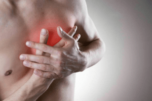Angine de la poitrine ou angor, pathologie se manifestant par une vive douleur au thorax