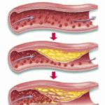Atherosclerose 2