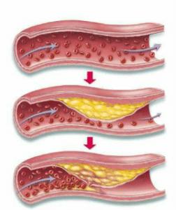 L'athérosclérose se traduit par la perte d'élasticité des artères due à des plaques d'athérome