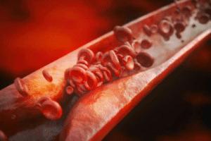 Les manifestations de l'athérosclérose varient selon l'artère concernée et la partie du corps qu'il vascularise