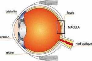 DMLA, ou dégénérescence maculaire liée à l'âge, pathologie de l'oeil qui se traduit par la baisse de l'acuité visuelle