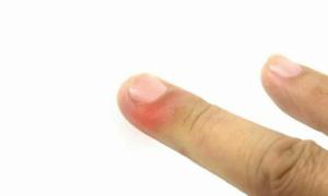 Manifestations de l'inflammation : rougeur, douleur, sensation de chaleur, tuméfaction locale, ...