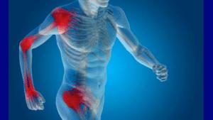 L'inflammation est la réponse de l'organisme face à une menace